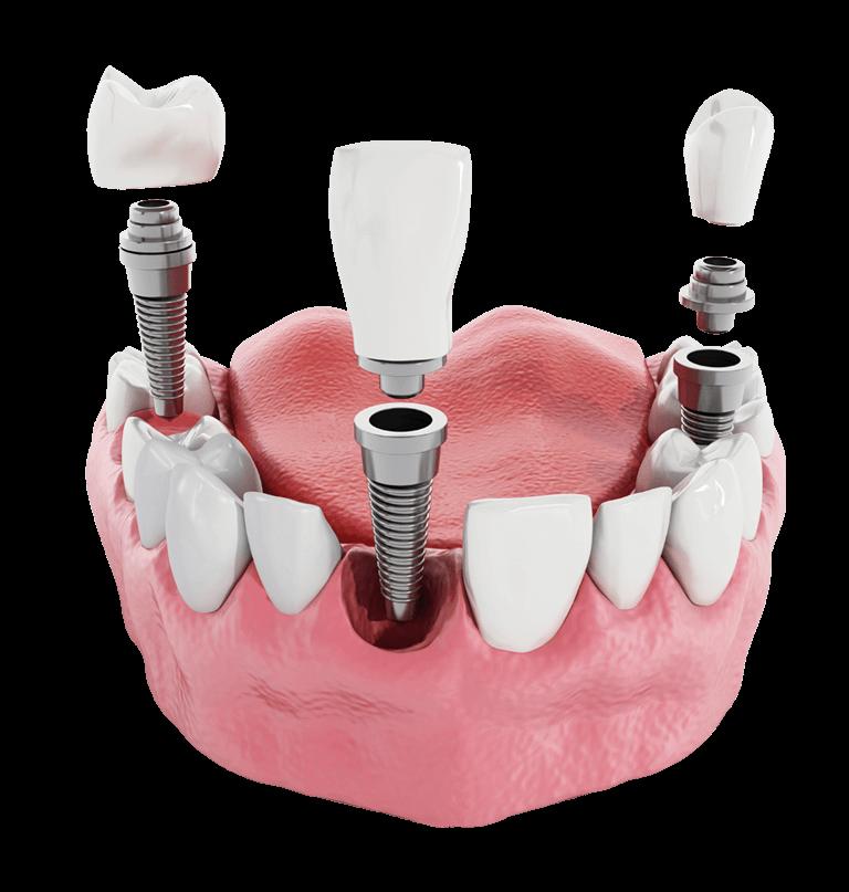 Implantate - 10 Jahre Garantie