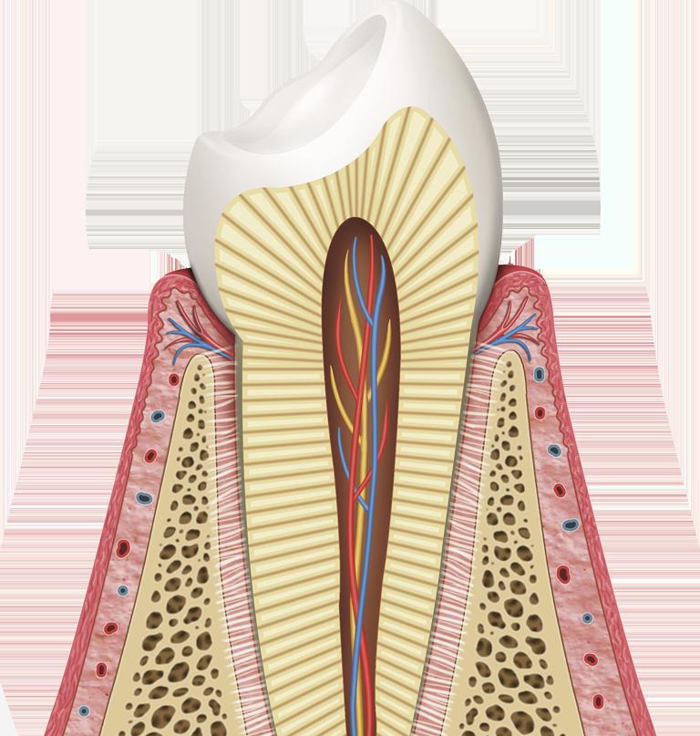 Knochen - und Zahnfleischaufbau