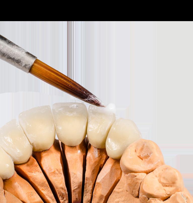 Zahnersatz (Prothetik)