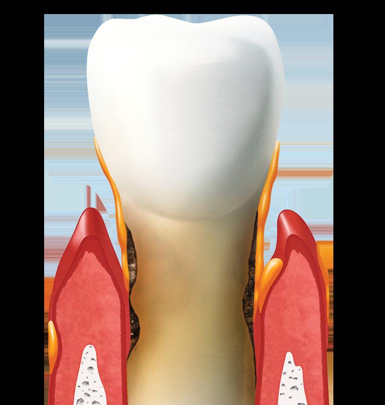 Zahnfleischbehandlung (Parodontologie)